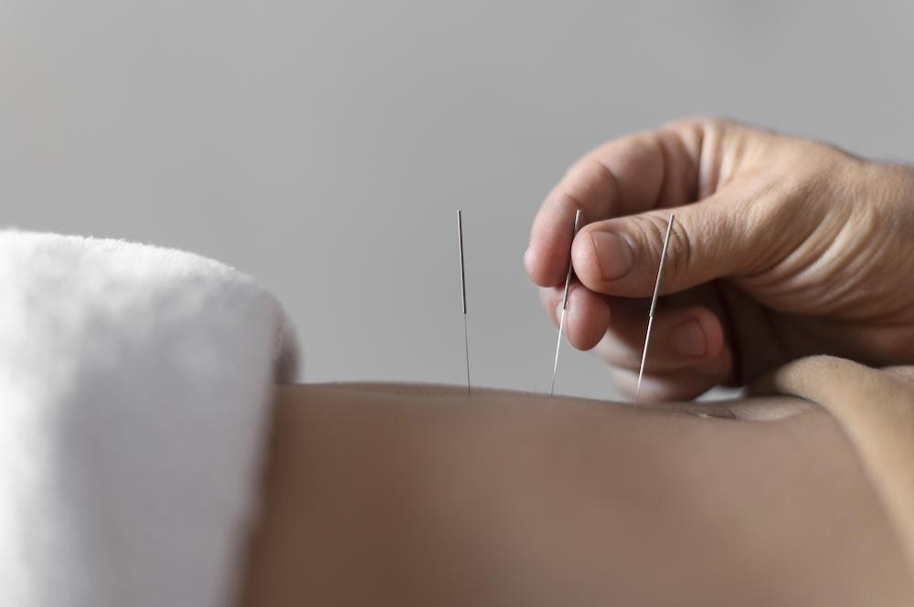 Tennisalbue akupunktur